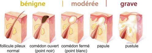 schema acné