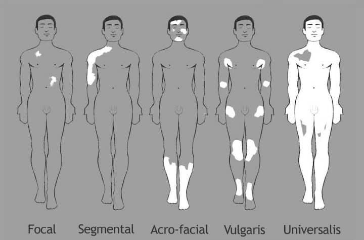 types-vitiligo