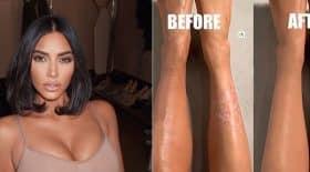 kim-kardashian-son-astuce-de-pro-pour-camoufler-son-psoriasis
