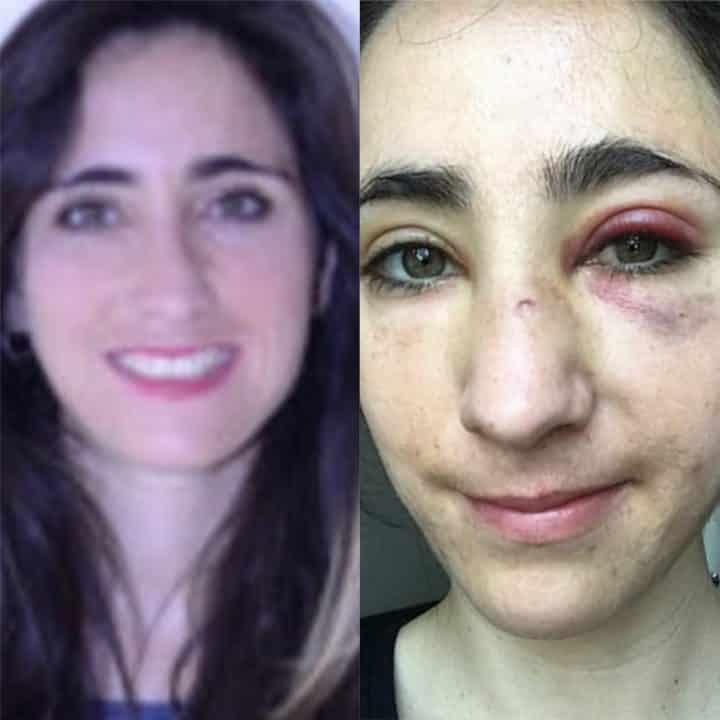 Violente agression d'un couple lesbien dans un bus
