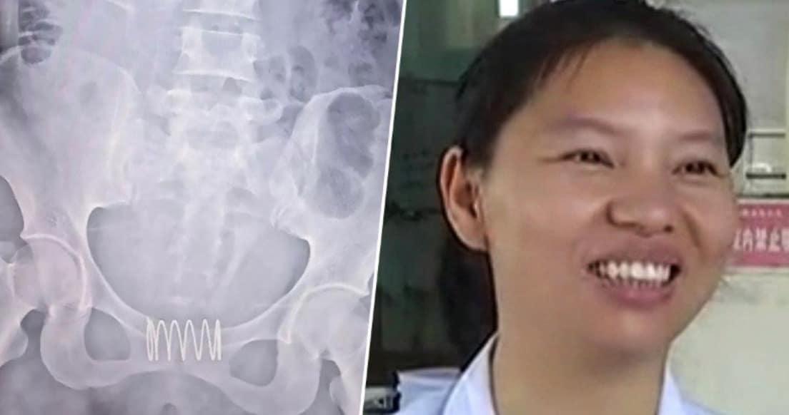 Elle s' introduit un ressort dans son vagin pour pour une raison hallucinante ! (vidéo)