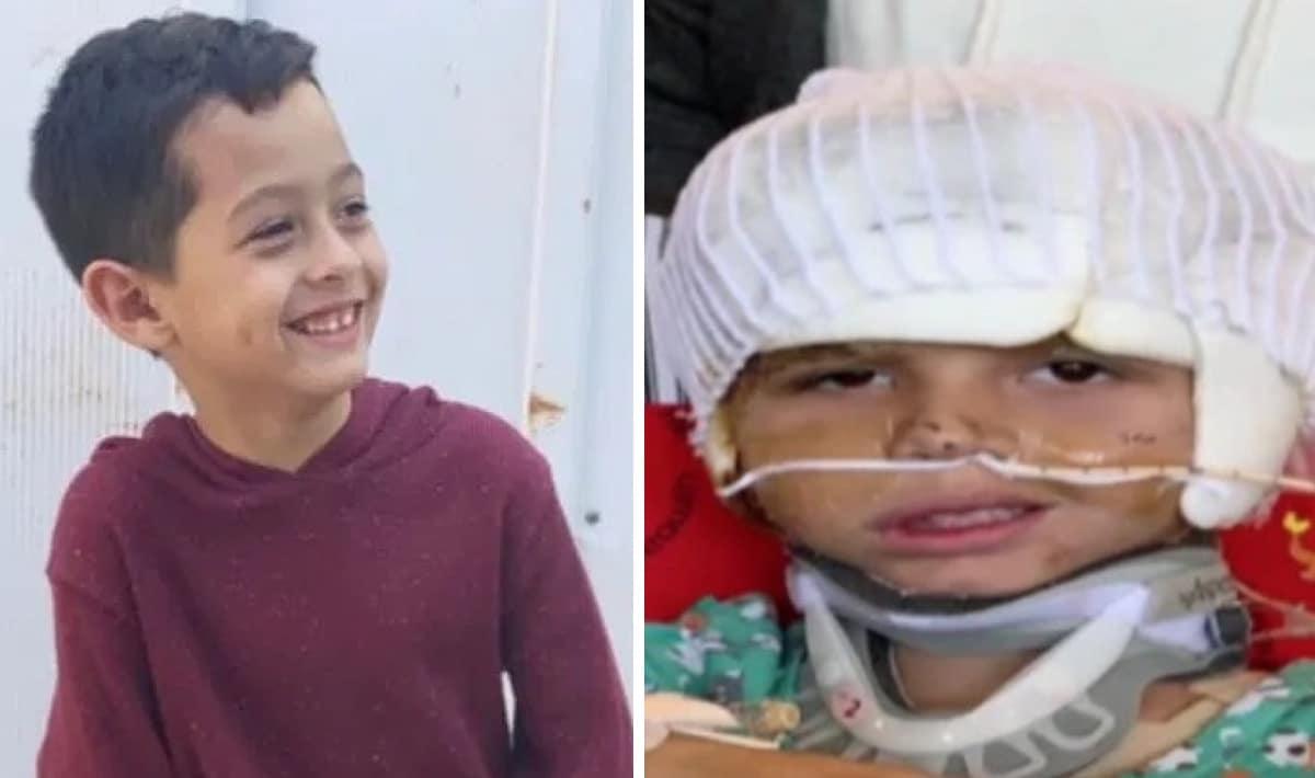 Cet enfant de 6 ans a perdu ses oreilles et son cuir chevelu après avoir subi une terrible attaque…
