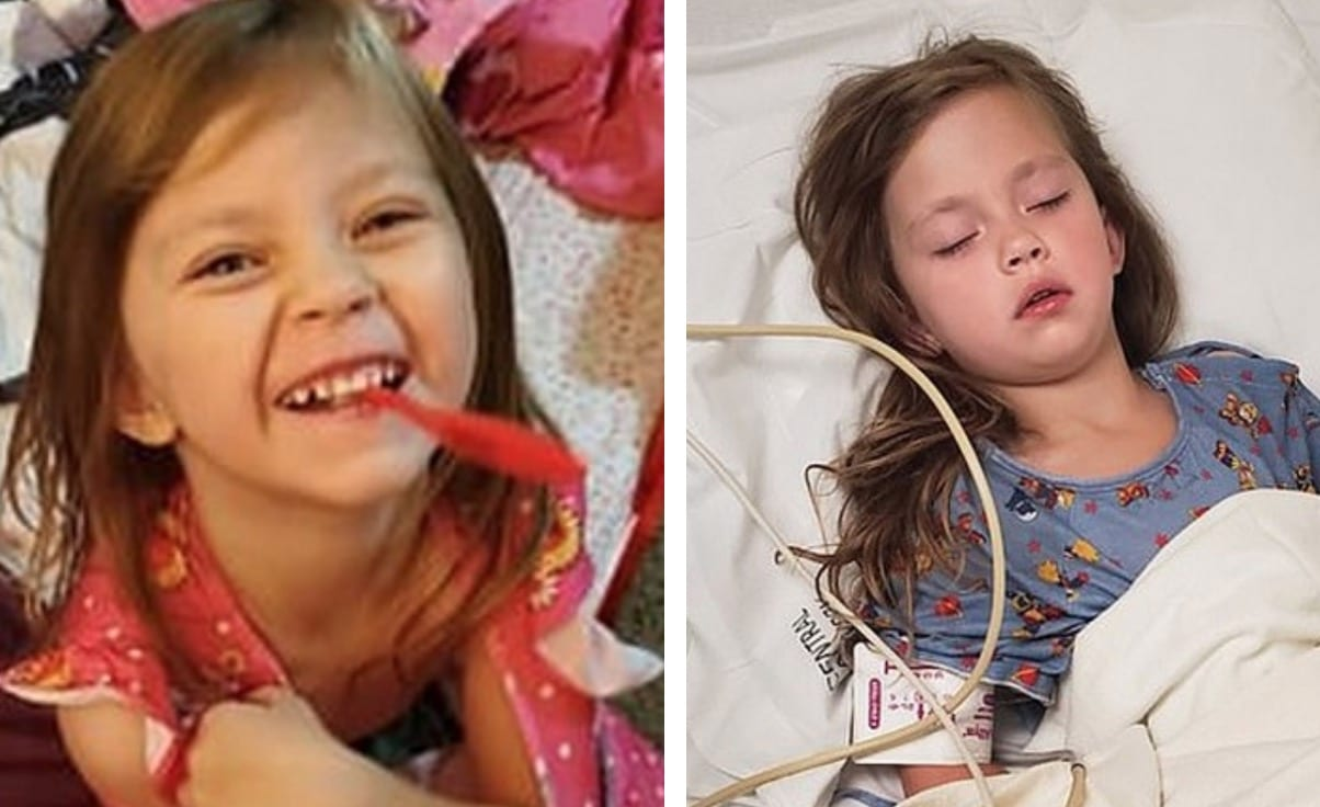 Cette petite fille de 5 ans se retrouve avec un énorme trou dans la bouche à cause d'un accident domestique. Son papa tire la sonnette d'alarme…