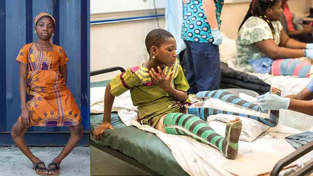 Elle avait les jambes tellement arquées qu'elle ne pouvait plus marcher: elle s'est fait opérer pour redresser ses jambes