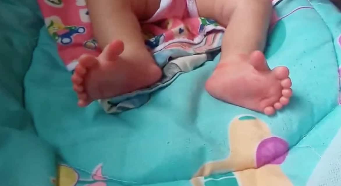 Ce bébé est né avec une malformation improbable ! (Vidéo)