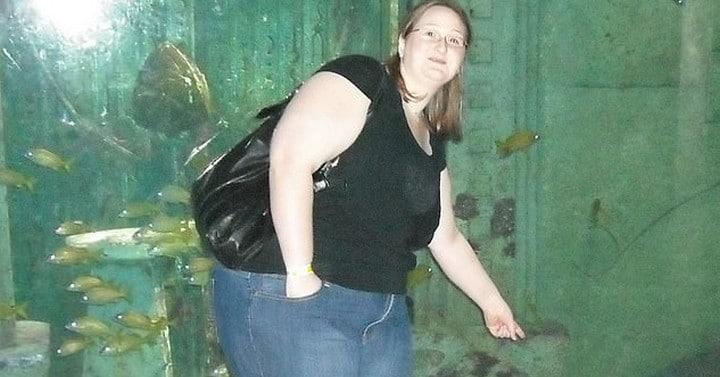 Après avoir perdu du poids, elle veut faire retirer 20 litres de graisse de ses jambes