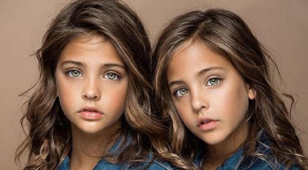 Ces deux petites filles étaient appelées «les plus belles jumelles du monde». Que sont-elles devenues ?