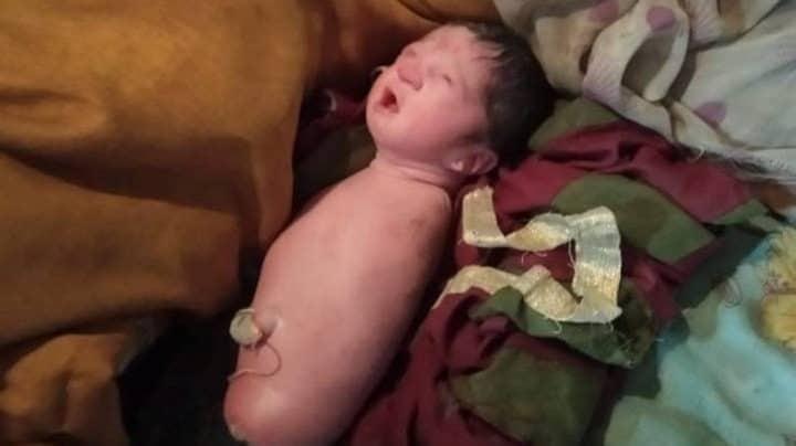 bébé sans quatre membres maladie tétra-amélie