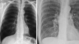 radio des poumons sains fumeur covid-19 comparaison
