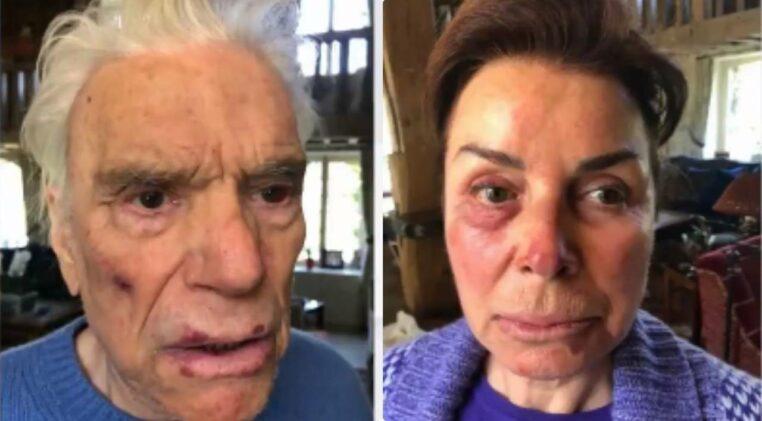 Bernard Tapie Dominique visages tuméfiés agression