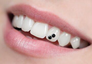 bijou dentaire