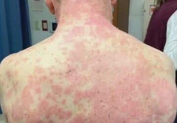 peau decolle vaccin