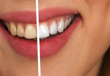 Astuce Vous désirez avoir des dents blanches Découvrez notre solution!