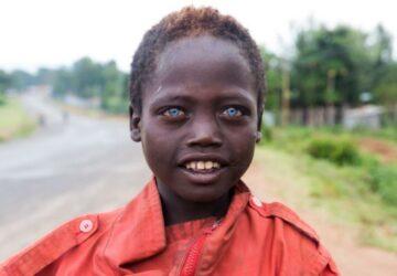 Ce garçon éthiopien a de rares yeux bleus, mais ça lui a apporté beaucoup de problèmes dans la vie